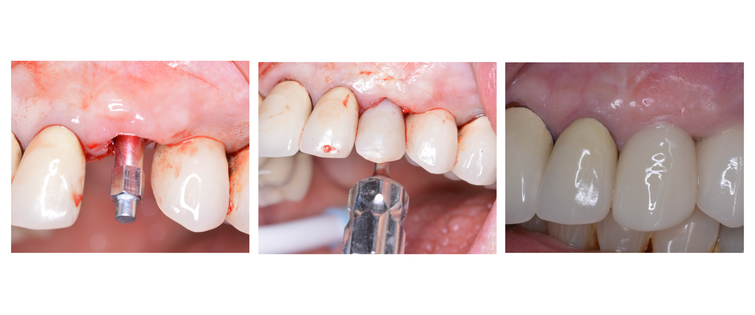 Download the implant stability ebook
