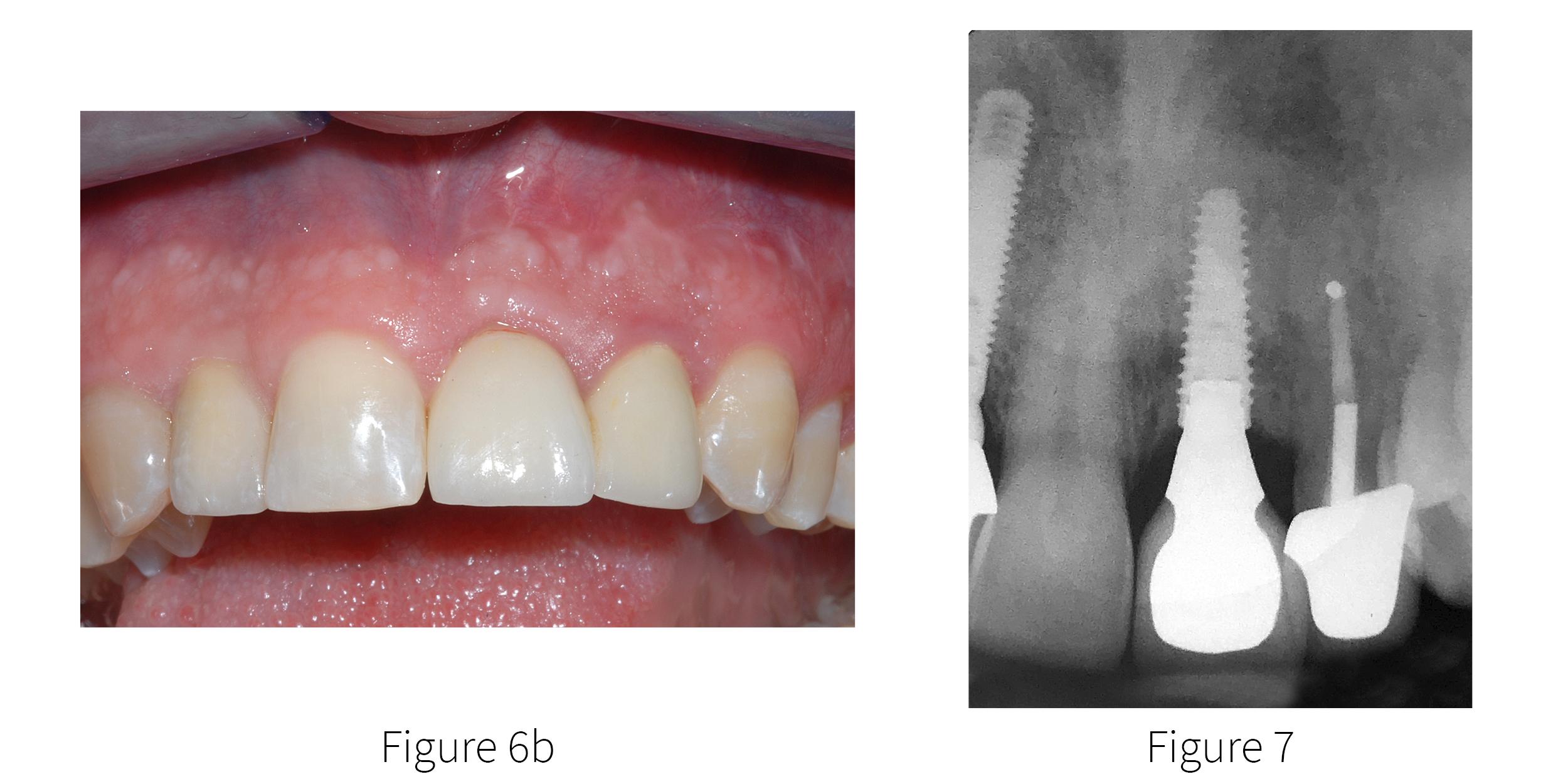 Fig 6b-7