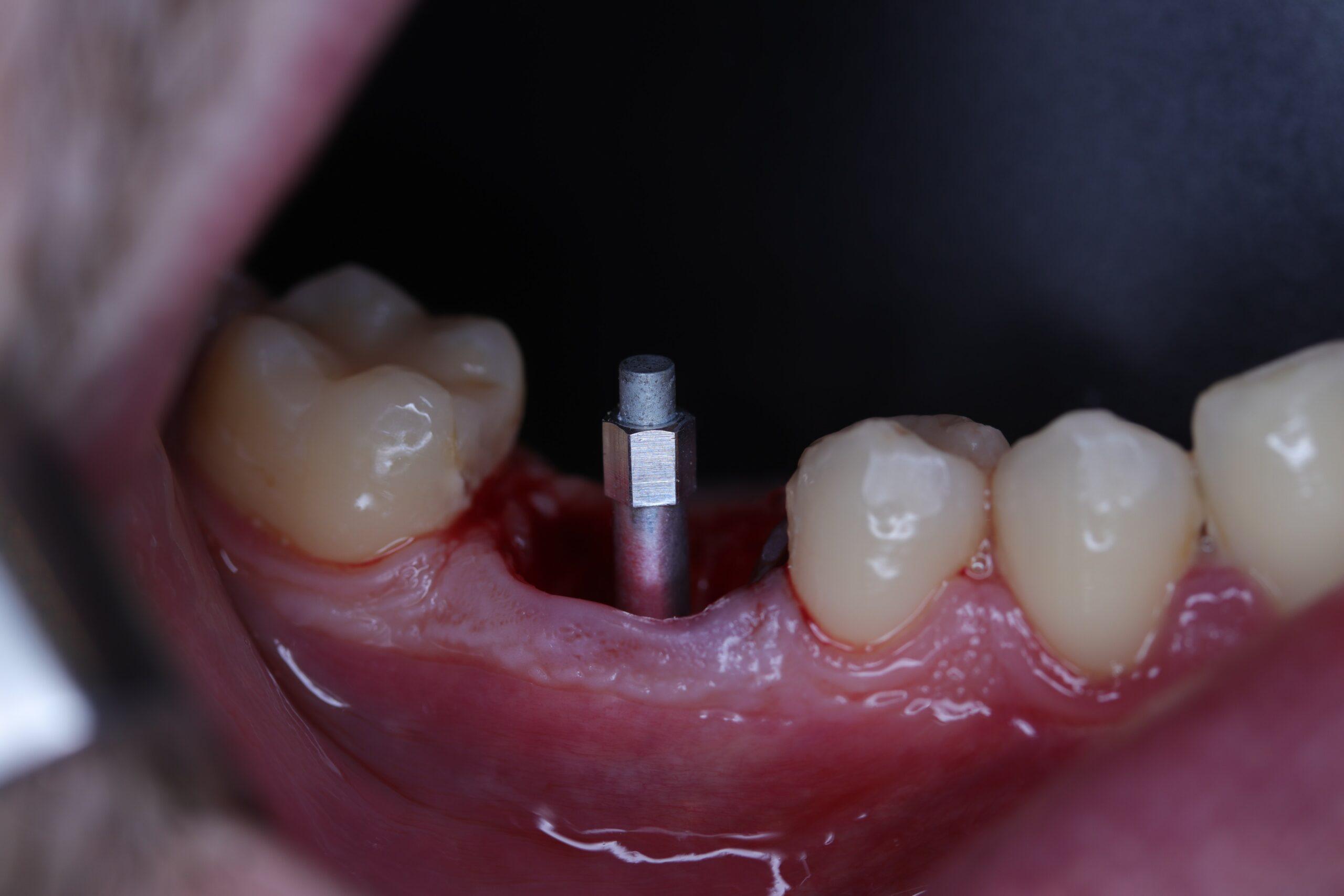 Figure 4 Smart-peg (Type 16) screwed to the implant platform