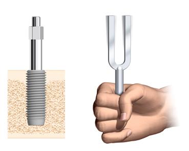 Tuningfork-and-SmartPeg